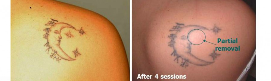 Home - The Tattoo Removal PlaceThe Tattoo Removal Place